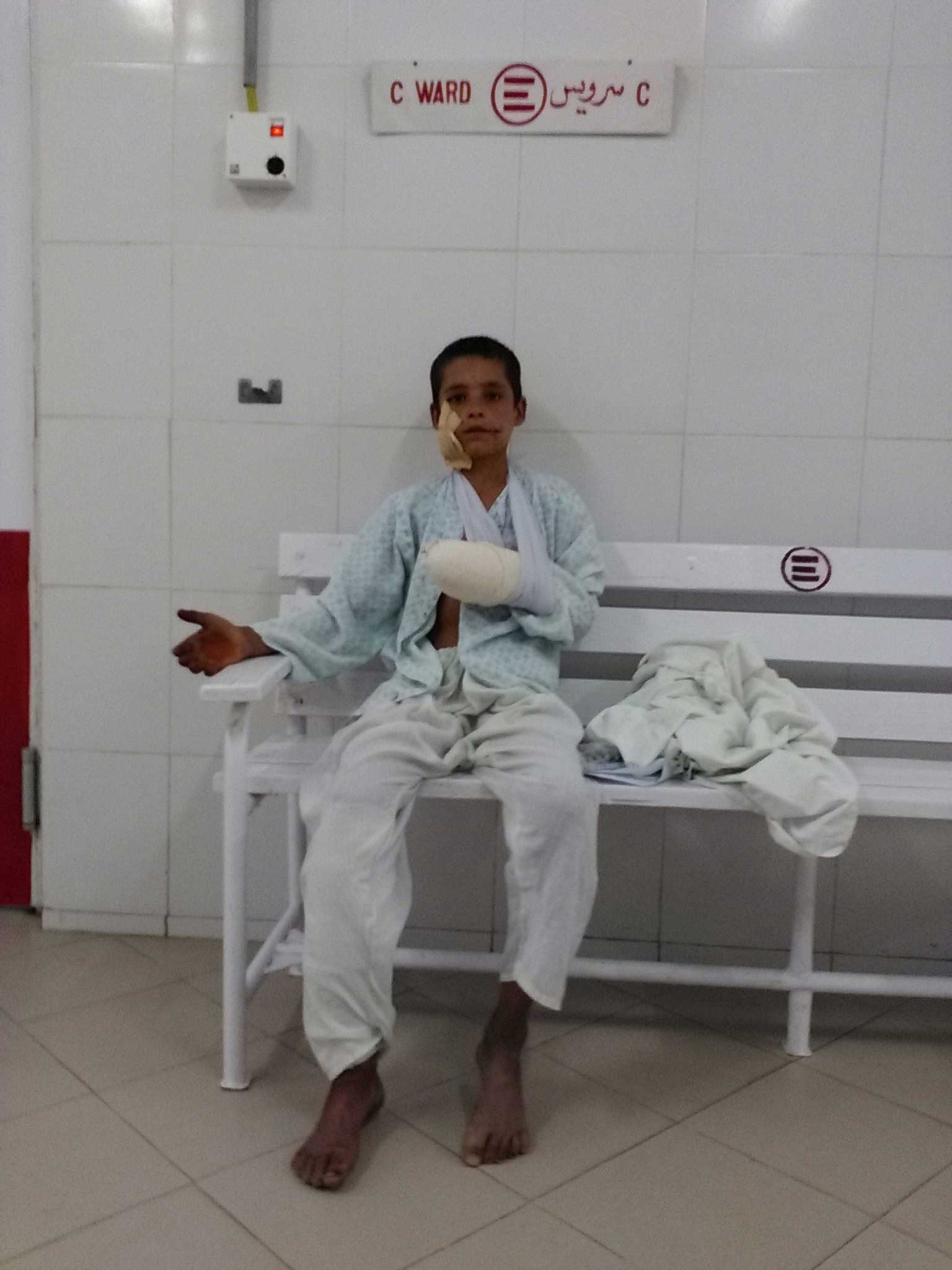 At the entrance of one of Lashkar-gah's hospital wards, a child shows his injured arm.